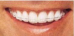 orthodontic_clip_image002_0001